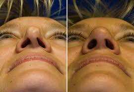 cirurgia no nariz funcional