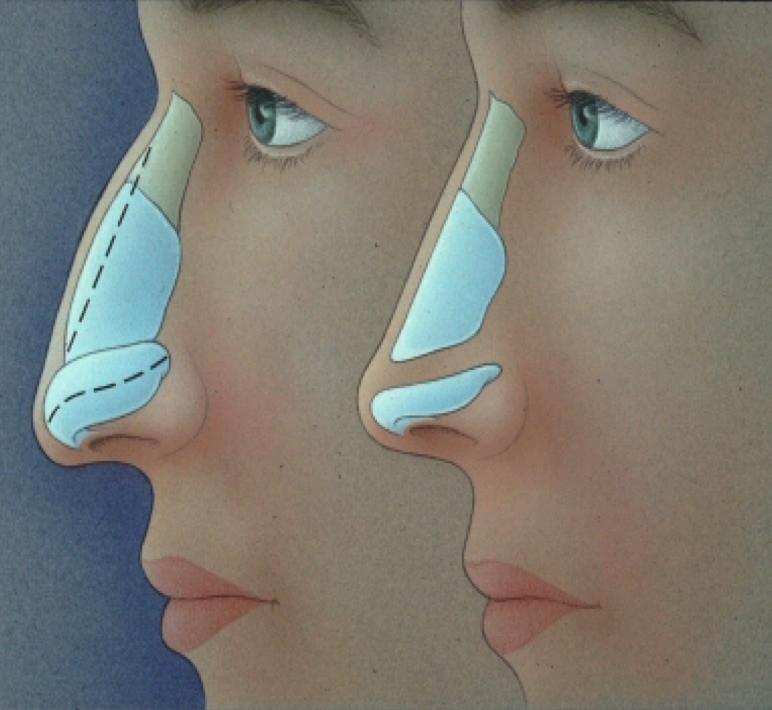 cirurgia plástica de Rinoplastia funcional