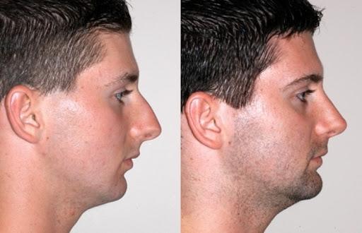 Técnica Spare Roof Technique (SRT) do Dr. Miguel Gonçalves repara Bossa nasal